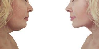 在皮下脂肪切除术做法前后的美女双下巴 免版税库存照片