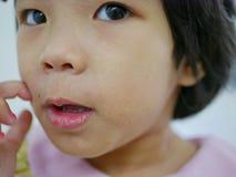 关闭痒一点亚裔的女婴抓在她的过敏面孔,它得到了使她的脸皮的疹干燥和 免版税库存图片