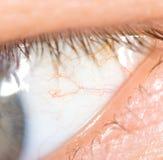 Åder i ögonen av män arkivbild