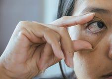 Åder på asiatisk kvinna för rött öga, ögonlocklagret, orsaker bruket av ögon och inte nog vilar arkivbild