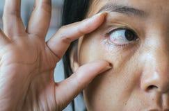 Åder på asiatisk kvinna för rött öga, ögonlocklagret, orsaker bruket av ögon och inte nog vilar arkivfoton