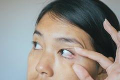 Åder på asiatisk kvinna för rött öga, ögonlocklagret, orsaker bruket av ögon och inte nog vilar royaltyfria foton