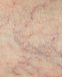 Åder på huden close Arkivfoto