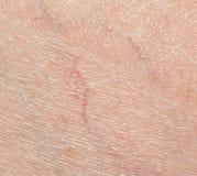 Åder på huden close arkivbild