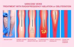 Åderbråcks åder och behandling med radiofrequencyablation stock illustrationer