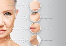 Åldras för skönhetbegreppshud anti--åldras tillvägagångssätt, föryngring och att lyfta, åtdragning av ansikts- hud Royaltyfri Foto