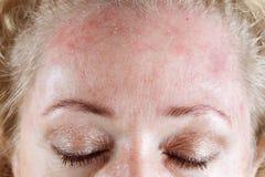 åldras hud Royaltyfria Bilder