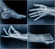50 åriga kvinnas röntgenstrålebildläsningar från händer och fot Royaltyfria Foton