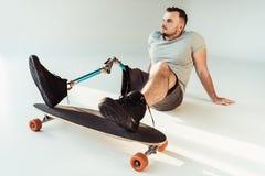 有腿假肢的体贴的年轻人有看起来的滑板的去 免版税库存照片
