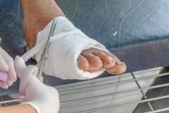 糖尿病脚溃疡 免版税库存照片