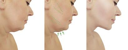 美女在procedureslifting更正的皮下脂肪切除术前后的双下巴推力 免版税库存图片