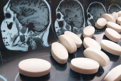 被分类的五颜六色的配药医学药片、胶囊和片剂在磁头和脑子共鸣扫描背景 库存图片