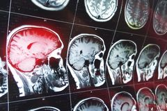 脑子的磁反应扫描与头骨的 MRI在黑暗的背景蓝色的头扫描 库存照片