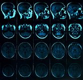 脑子的磁反应扫描与头骨的 MRI在黑暗的背景蓝色的头扫描 免版税库存图片