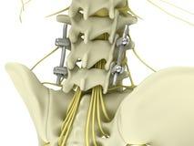 金属pedicle螺丝在白色背景3d例证隔绝的腰脊柱的定象系统 向量例证