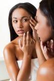 É acne? fotos de stock royalty free