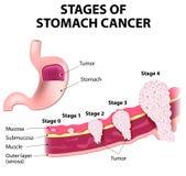 Échafaudage de cancer de l'estomac illustration stock