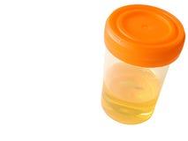 Échantillon d'urine Image libre de droits