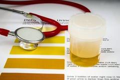 Échantillon d'urine humain photos stock