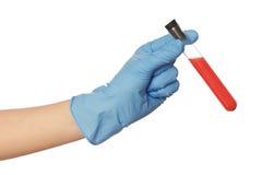 Échantillon de sangs Photo stock