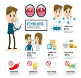 Élément infographic d'amygdalite illustration stock