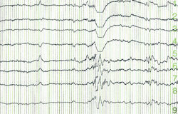 Électro-encephalogramme Image libre de droits