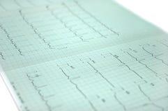 Électrocardiogramme Images libres de droits