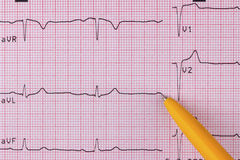 électrocardiogramme Photos libres de droits