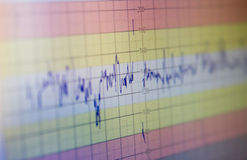 électrocardiogramme Photo stock