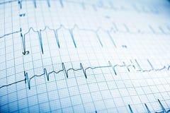 électrocardiogramme Images stock