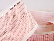 Électrocardiogramme analysant le problème de maladie cardiaque Images stock