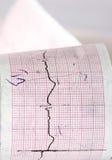 Électrocardiogramme CTG Images stock