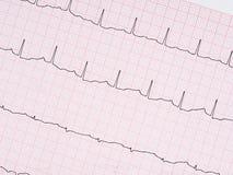Électrocardiogramme, détail d'ECG Image stock