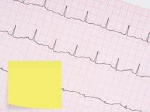 Électrocardiogramme, détail d'ECG Avec la note collante vide pour le message Photographie stock