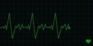 Électrocardiogramme d'ECG Image libre de droits