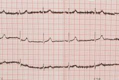 Électrocardiogramme d'isolement Photographie stock libre de droits