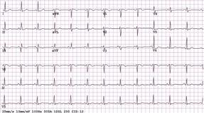 électrocardiogramme de 12 fils de sortie Photos libres de droits
