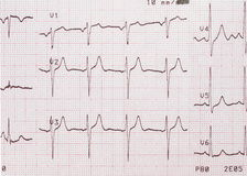Électrocardiogramme, document imprimé d'ECG Photos stock