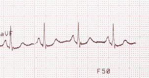 Électrocardiogramme, document imprimé d'ECG Images stock