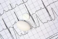 Électrocardiogramme ECG Images stock