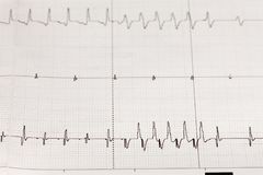 Électrocardiogramme ECG/électrocardiogramme avec l'arythmie du coeur Image libre de droits