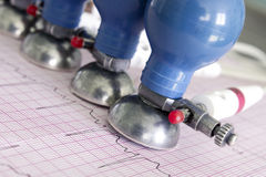Électrocardiogramme estampé et électrodes d'ECG Image libre de droits