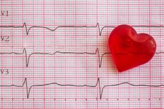 Électrocardiogramme et coeur Images libres de droits