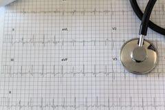 Électrocardiogramme et stéthoscope photo libre de droits