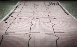 électrocardiogramme 12-Lead d'un patient étant arpenté images libres de droits