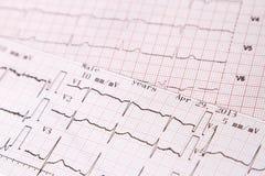 Électrocardiogramme pour surveiller le coeur Photo libre de droits