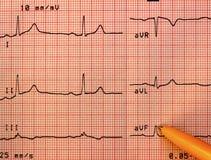 Électrocardiogramme sain de coeur Photos libres de droits