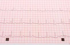Électrocardiogramme sur la grille rose Photo stock