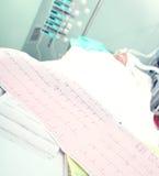 Électrocardiogramme sur un fond sérieusement de malade Images libres de droits