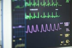 Électrocardiographe dans la chirurgie d'hôpital Image libre de droits